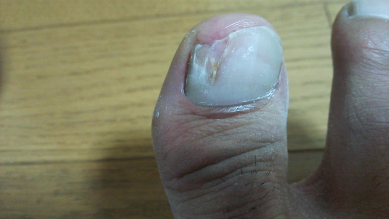 爪水虫 治し方 自力
