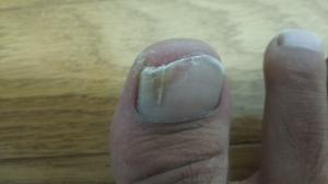 親指の爪白癬(爪水虫)切った後の症状写真・画像