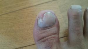爪水虫 症状写真画像
