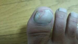 爪水虫4週間目 症状写真・画像