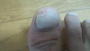 爪白癬(爪水虫)写真・画像 4か月