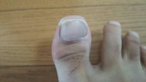 爪白癬(爪水虫)写真・治療画像
